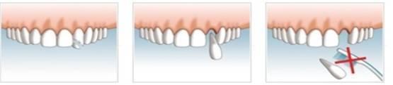 Zahnunfall